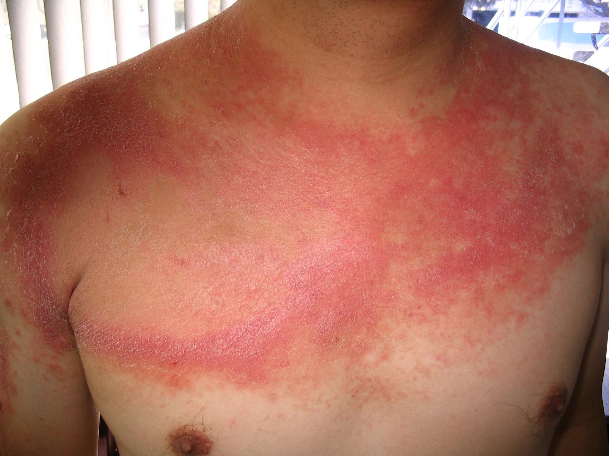 Natural Cures For Psoriasis And Eczema